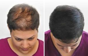 میکروپیگمنتیشن موی سر - هاشور ابرو - میکروپیگمنتیشن لب