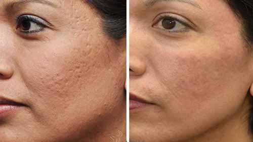 آموزش میکرونیدلینگ مزونیدلینگ پوست