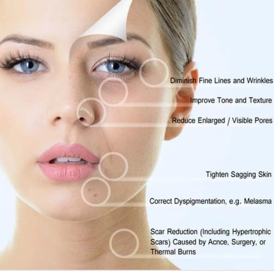 آموزش پاکسازی پوست با میکرونیدلینگ و درماپن