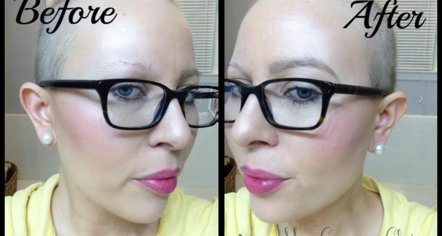 شیمی درمانی سرطان علت ریزش موی ابرو