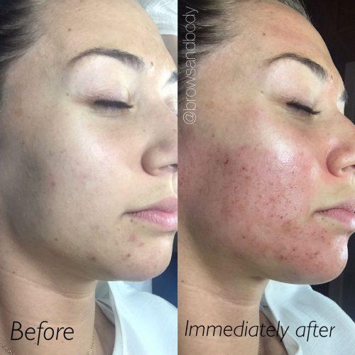عکسی از قبل و بعد از میکرونیدلینگ بعد از گذشت 1 دوره درمان