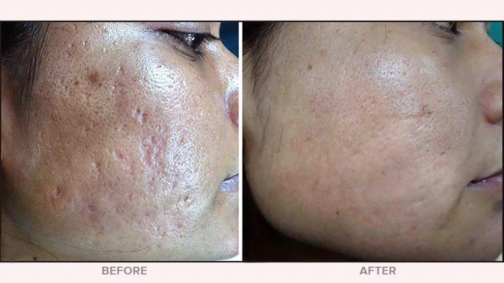 درمان میکرودرم ابریژن، لایه برداری پوست پاکسازی پوست
