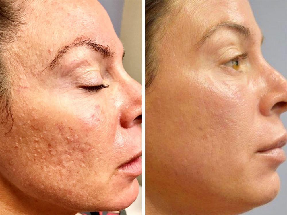 آموزش میکرونیدلینگ، آموزش پاکسازی پوست، آموزش مراقبت از پوست