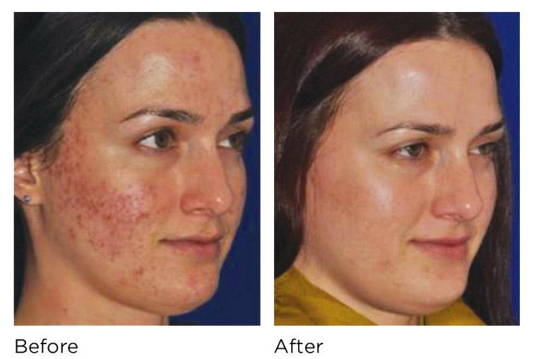 آموزش مراقبت از پوست در تهران (میکرونیدلینگ)